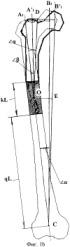 Способ удлинения бедренной кости с одновременным восстановлением биомеханической оси конечности