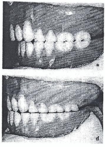 Способ восстановления центрального соотношения челюстей при протезировании пациентов с полными съемными протезами