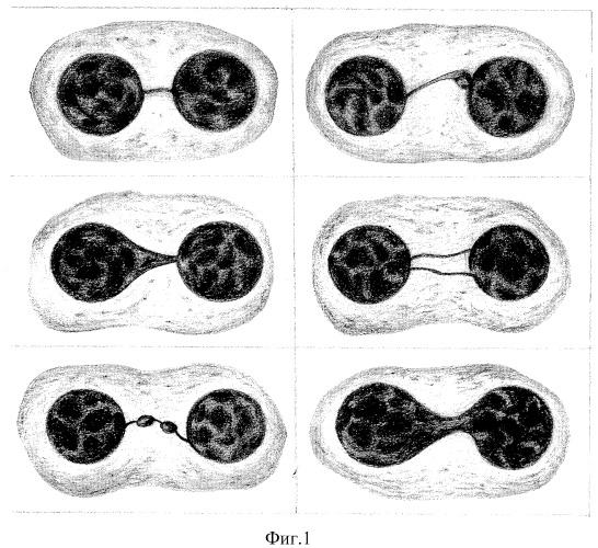 Способ биоиндикации радиационного воздействия на щитовидную железу