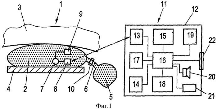 Система контроля управляемого бандажа на желудке