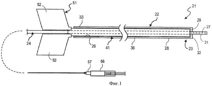 Конвекционный доставляющий катетер со съемным элементом жесткости и способ его применения