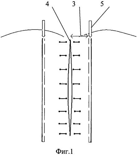 Способ комплексного лечения эпителиального копчикового хода