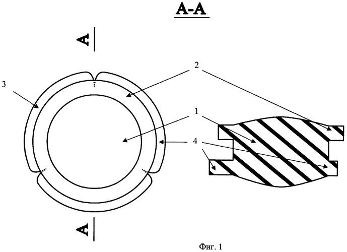 Сменная интраокулярная линза и устройство для ее фиксации