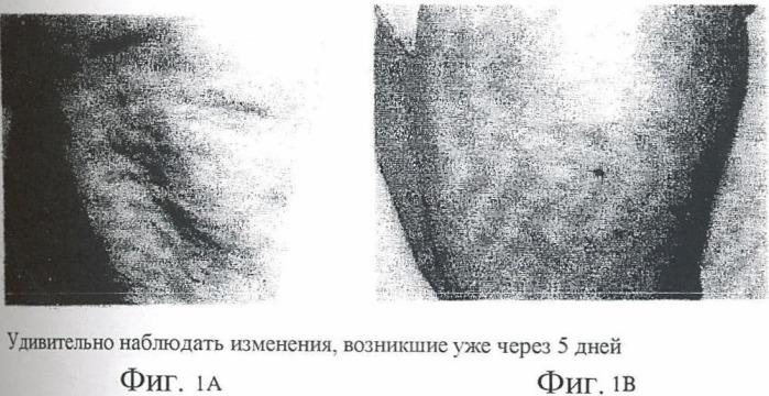 Способ фотодинамической терапии для лечения целлюлитов и косметического использования