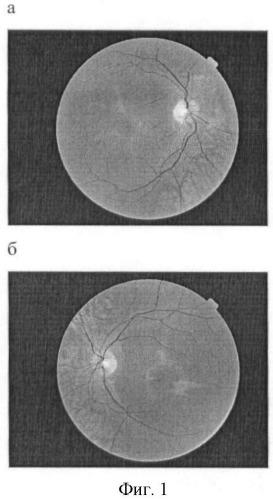 Способ диагностики ахроматопсии