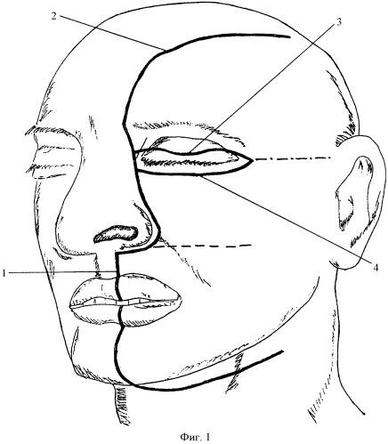 Способ хирургического доступа к опухолям подвисочной, крыло-небной ямок, крыловидно-челюстного пространства и носоглотки