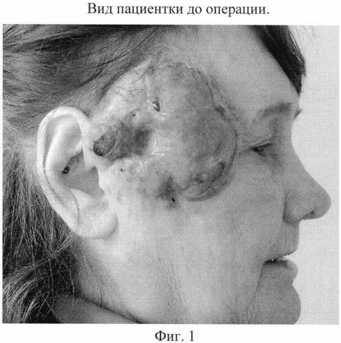 Способ хирургического лечения распространенного рака кожи околоушной области с метастазами в лимфатические узлы шеи