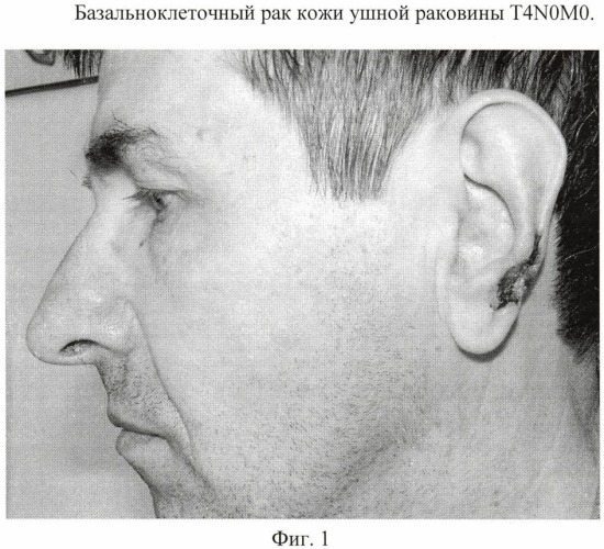 Способ пластики завитка и мочки ушной раковины