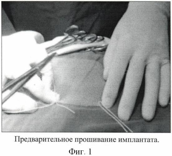 Способ размещения имплантата