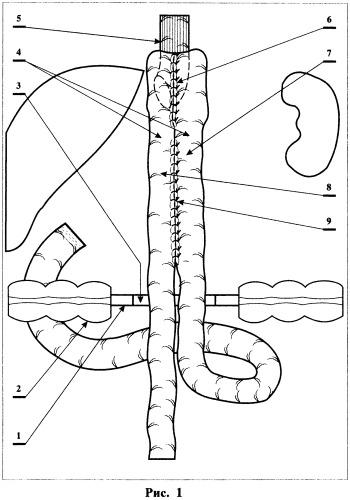 Способ формирования искусственного желудка