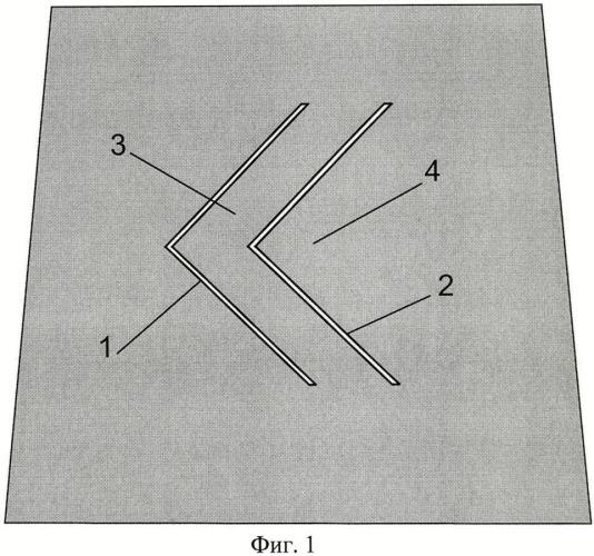 Способ пластики капсулы тазобедренного сустава при врожденном вывихе бедра