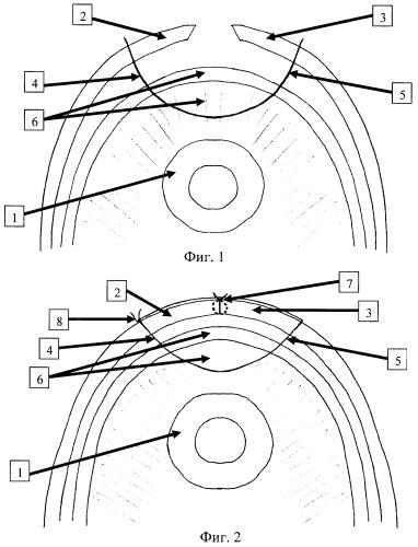 Способ предупреждения возникновения ранних вывихов бедра и рецидива наружной ротационной контрактуры тазобедренного сустава после эндопротезирования больных коксартрозом