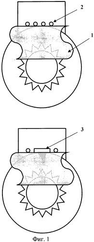 Способ хирургического лечения первичной открытоугольной глаукомы