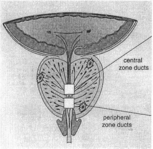 Что такое латентное течение простатита