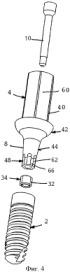 Система для установки имплантатов