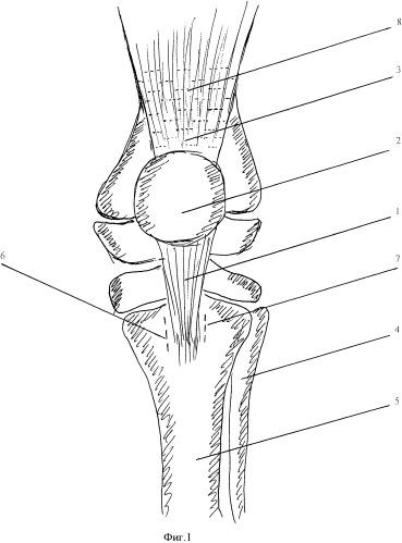 Способ лечения разгибательной контрактуры коленного сустава у детей с ювенильным хроническим артритом