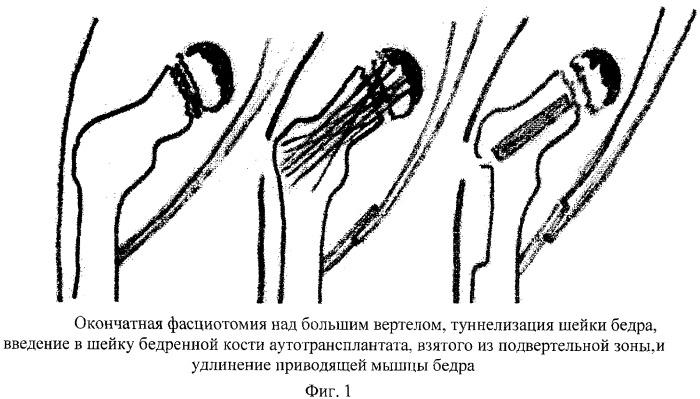 Способ лечения болезни пертеса