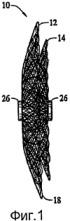 Многослойные плетеные конструкции для окклюзии сосудистых дефектов
