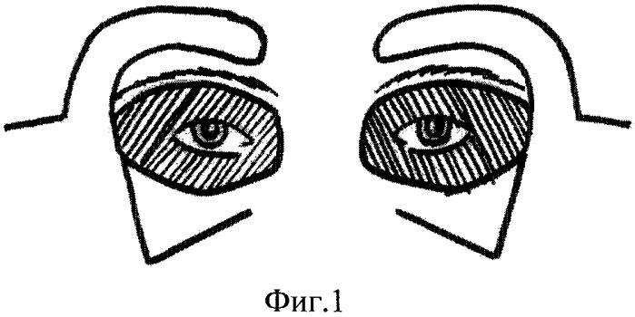 Способ закрытия билатерального тотального дефекта обоих век внутреннего и наружного углов глаза