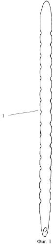 Способ лапаростомии и устройство для его осуществления