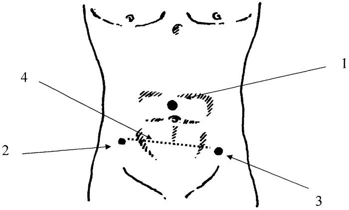 Способ лапароскопической аппендэктомии