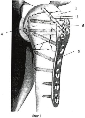 Способ оперативного лечения трехфрагментарных переломов проксимального отдела плечевой кости