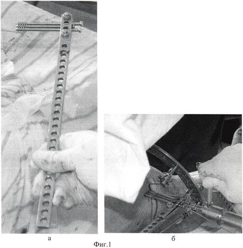 Способ дистального блокирования интрамедуллярного стержня