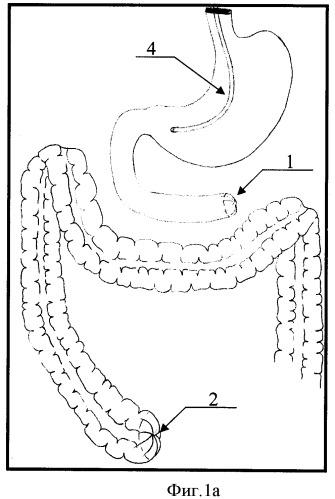 Способ лечения больных с тотальным некрозом тонкой кишки