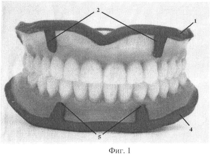Способ изготовления полных съемных зубных протезов