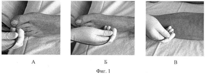 Способ интраоперационного прогнозирования эффекта опосредованной реваскуляризации у больных с хронической ишемией нижних конечностей