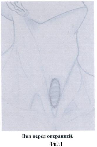 Способ пластики трахеи местными тканями с укреплением передней стенки пластиной из пористого никелида титана и грудино-ключично-сосцевидными мышцами