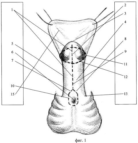 Способ хирургической коррекции проксимальных форм гипоспадии