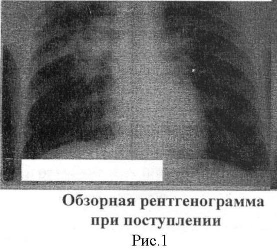 Способ лечения деструктивного туберкулеза легких