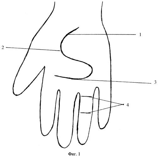Способ оперативного лечения контрактуры дюпюитрена