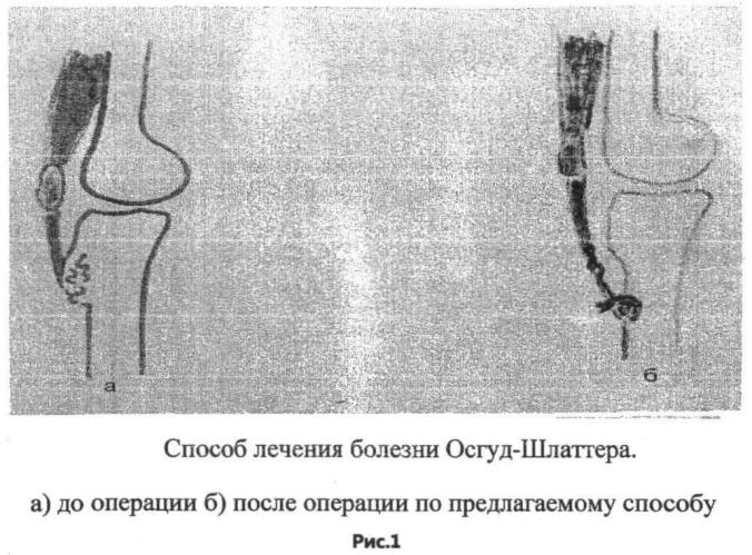 Способ лечения болезни осгуд-шляттера