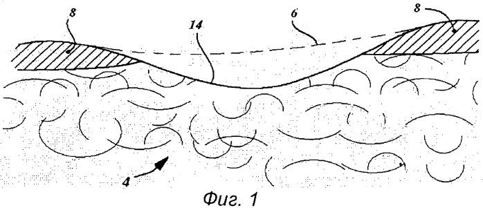 Система in-situ для внутриартикулярной регенерации хрящевой и костной тканей
