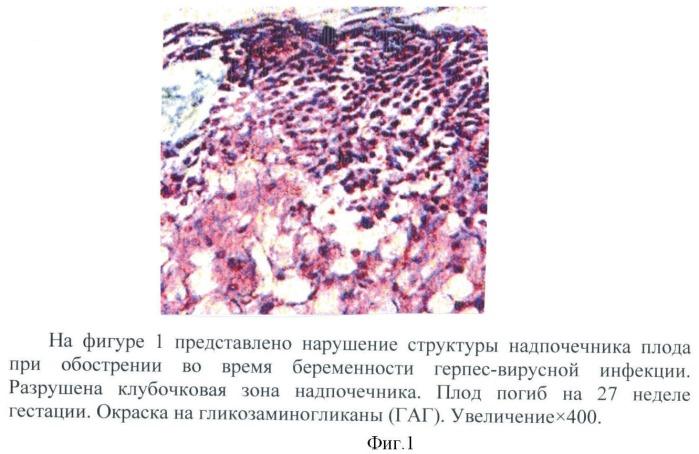 Способ оценки индуцирующего действия герпес-вирусной инфекции на активность формирования дегидроэпиандростеронсульфата и эстрадиола