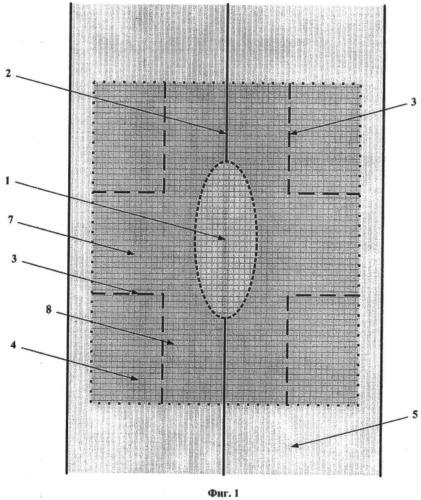Способ пластики грыж передней брюшной стенки