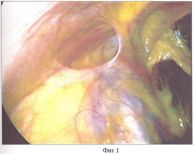 Способ лечения детей с паховыми грыжами методом видеоассистированного экстраперитонеального лигирования шейки грыжевого мешка