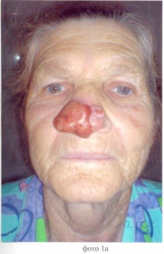 Способ восстановления наружного носа при субтотальных дефектах