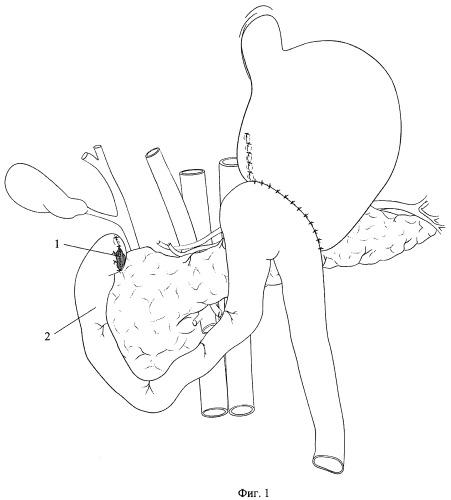 Способ хирургического лечения дуоденального свища при несостоятельности культи после резекции желудка и гастрэктомии