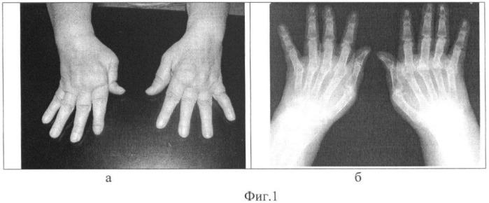 Способ реконструкции деформаций кисти при ревматоидном артрите