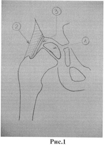 Способ лечения дефекта головки бедренной кости у детей с детским церебральным параличом