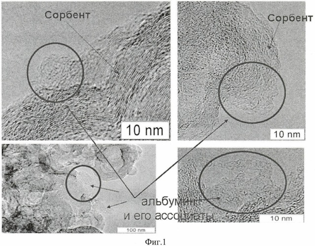 Способ модифицирования углеродного гемосорбента и углеродный гемосорбент с иммобилизованным белком