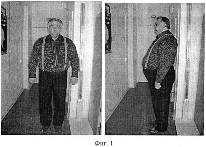 Способ лечения метаболического синдрома