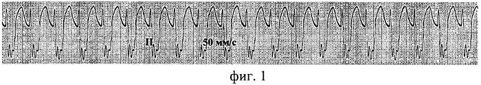 Способ диагностики атриовентрикулярной узловой эктопической тахикардии у детей после хирургического лечения врожденных пороков сердца выявлением атриовентрикулярной диссоциации на экг с применением медикаментозных препаратов (варианты)