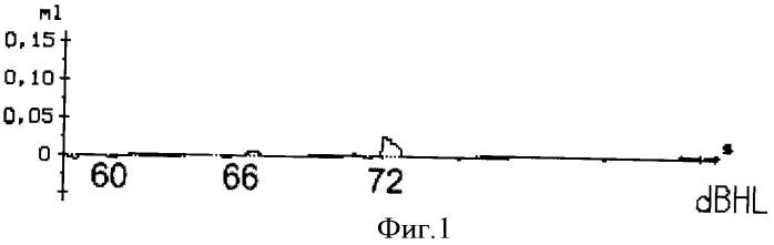 Способ определения пороговых уровней акустического мышечного рефлекса