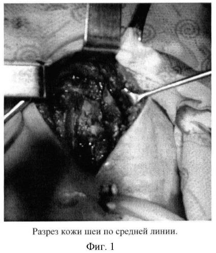 Способ пластики гортани аутотрансплантатом из подъязычной кости на питающей ножке