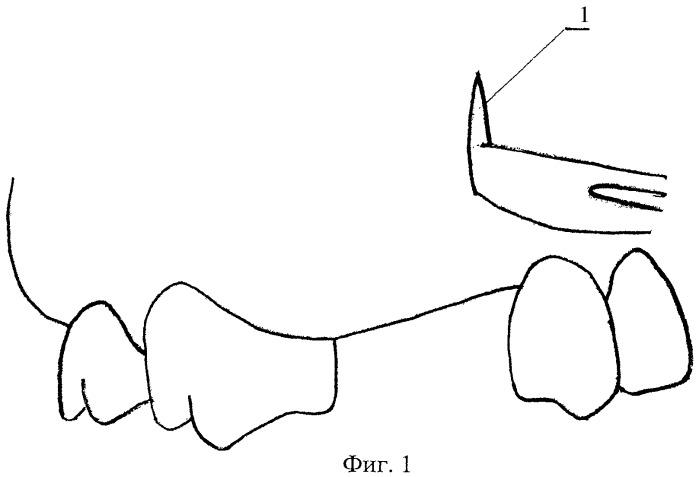 Способ лечения больных с частичной вторичной адентией и атрофией альвеолярного отростка верхней челюсти