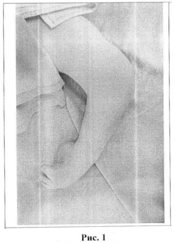 Способ лечения сгибательной контрактуры коленного сустава и косолапости у детей